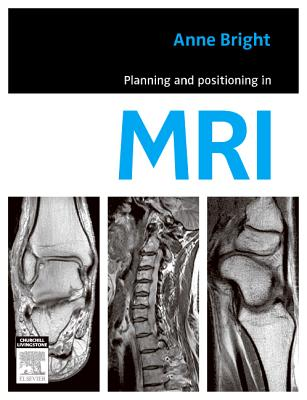 Planning and Positioning in MRI By Anne, Bright